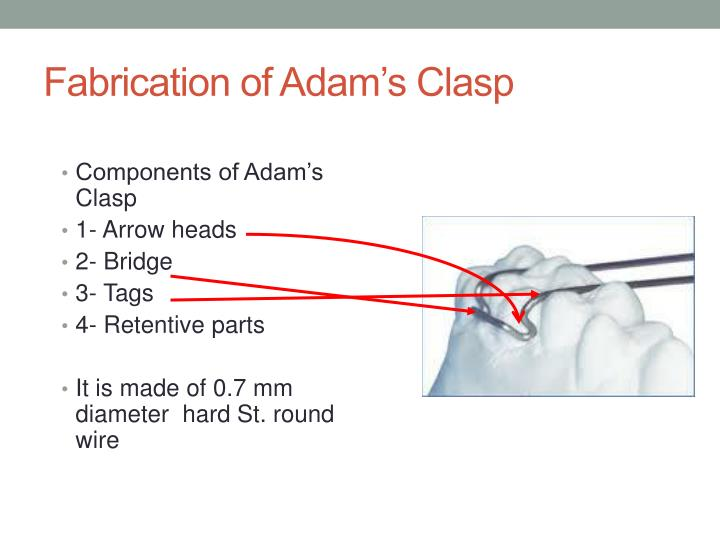 Fabrication of Adam's Clasp