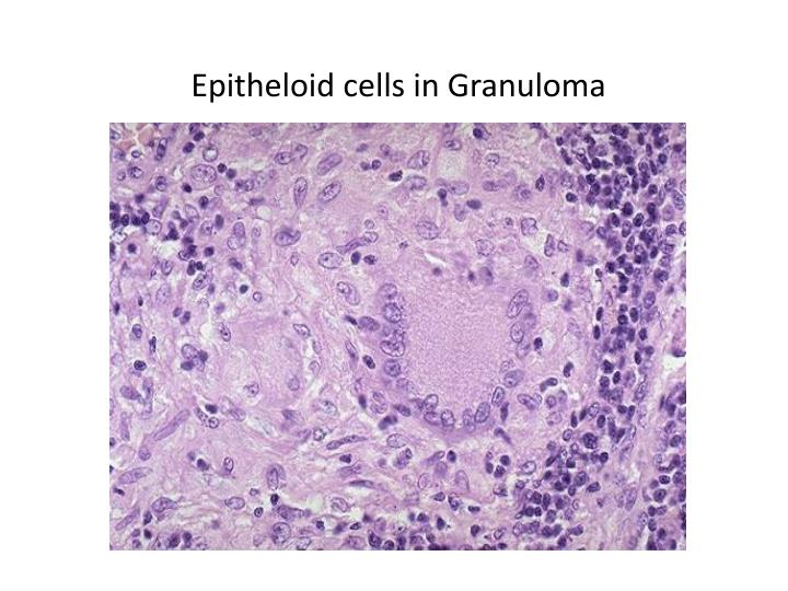 Epitheloid cells in