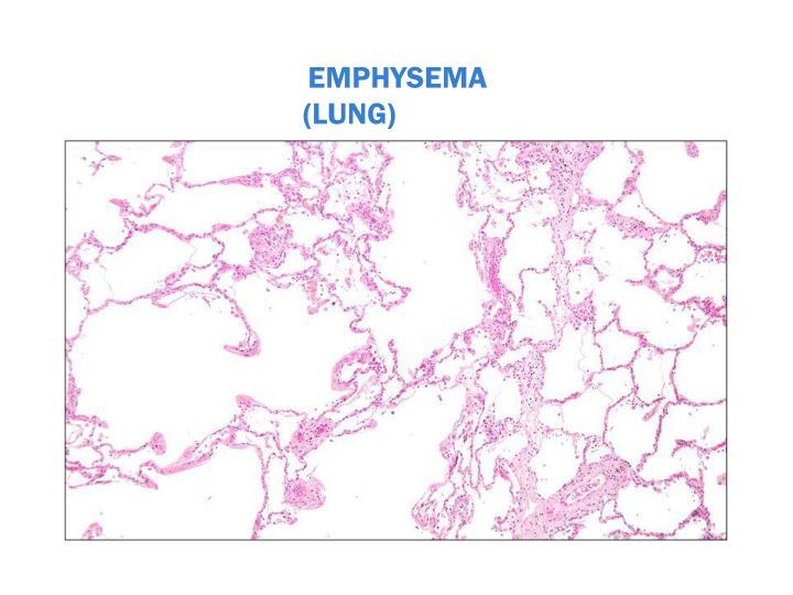 EMPHYSEMA (LUNG)