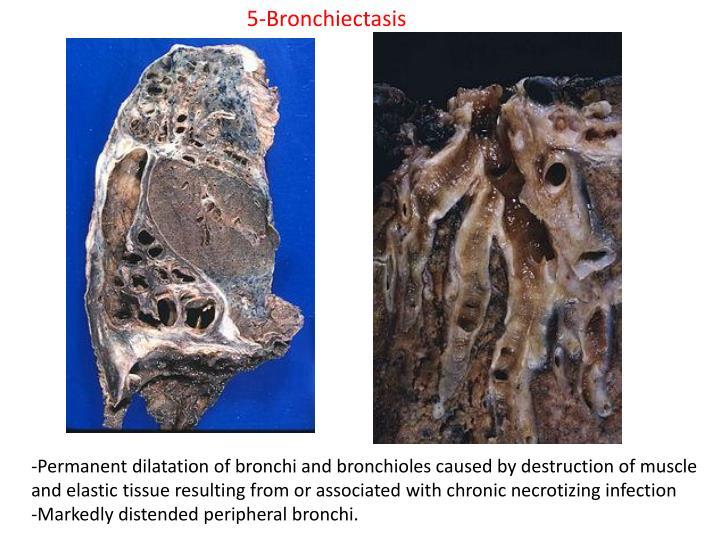 5-Bronchiectasis