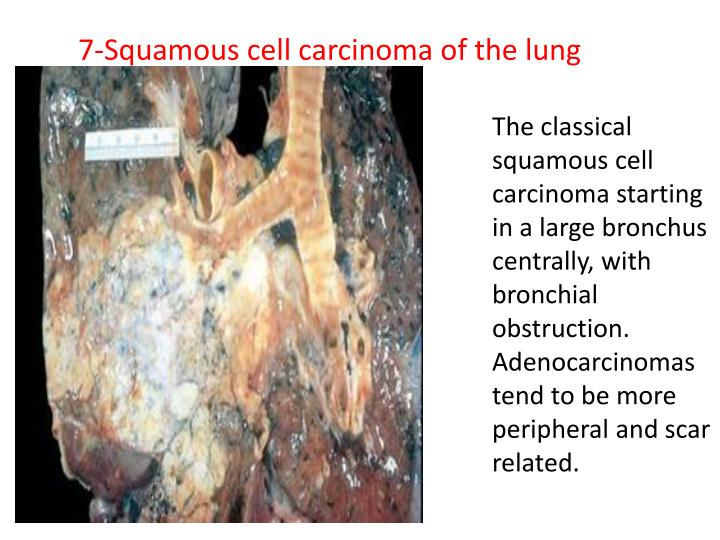 7-Squamous cell carcinoma of the lung