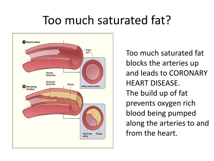 Too much saturated fat?