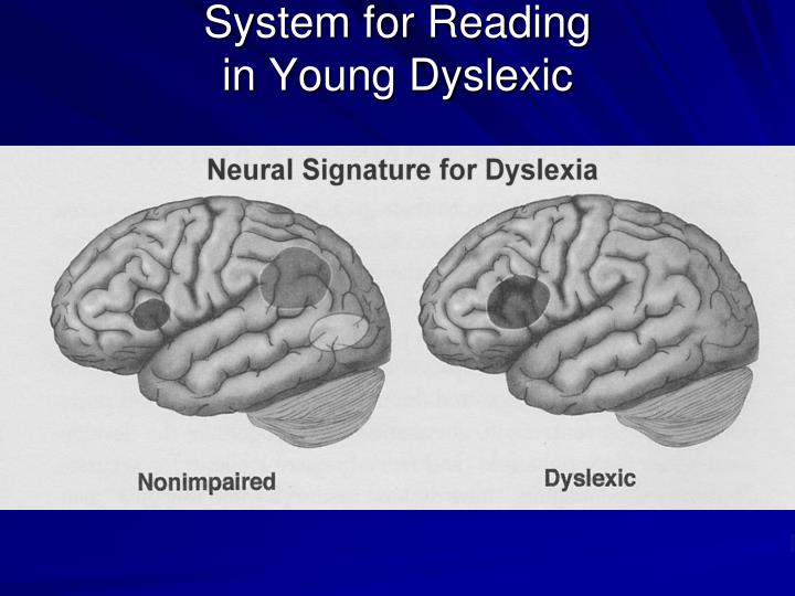 System for Reading