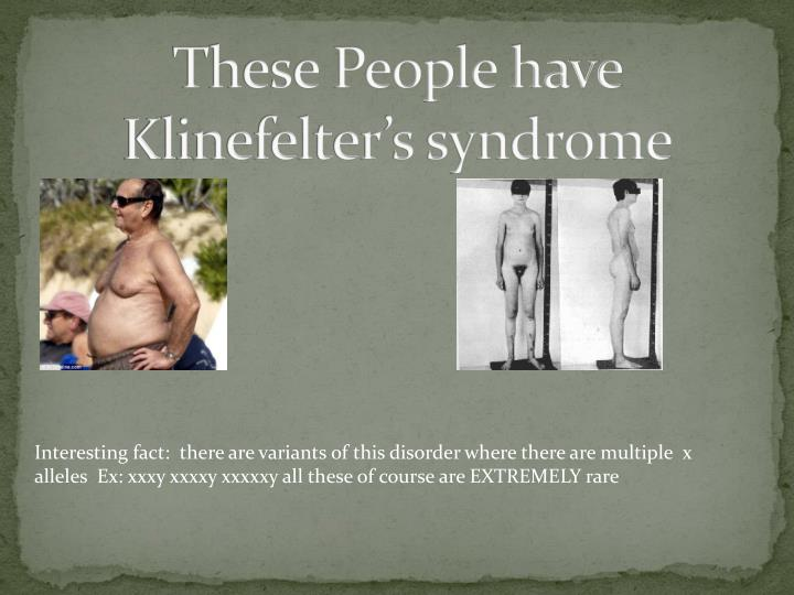 These People have Klinefelter's syndrome