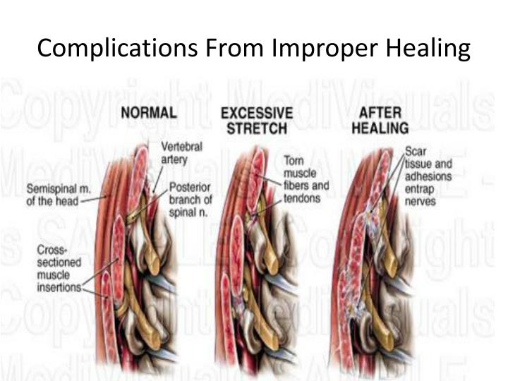 Complications From Improper Healing