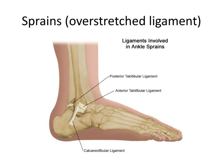 Sprains (overstretched ligament)