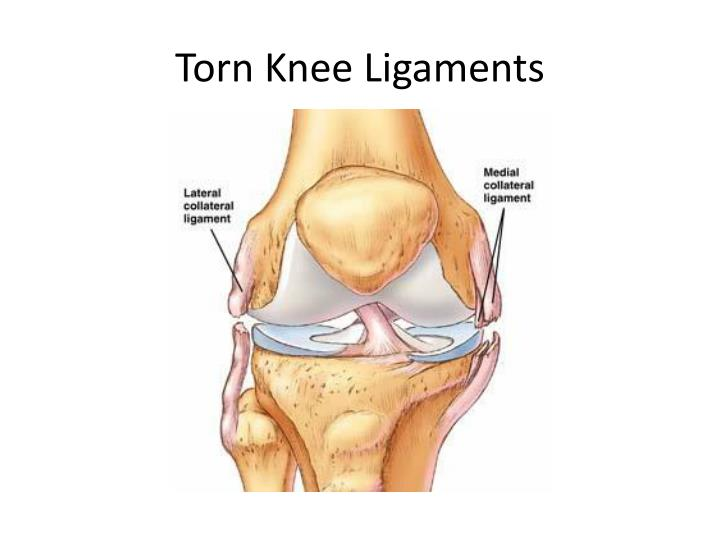 Torn Knee Ligaments