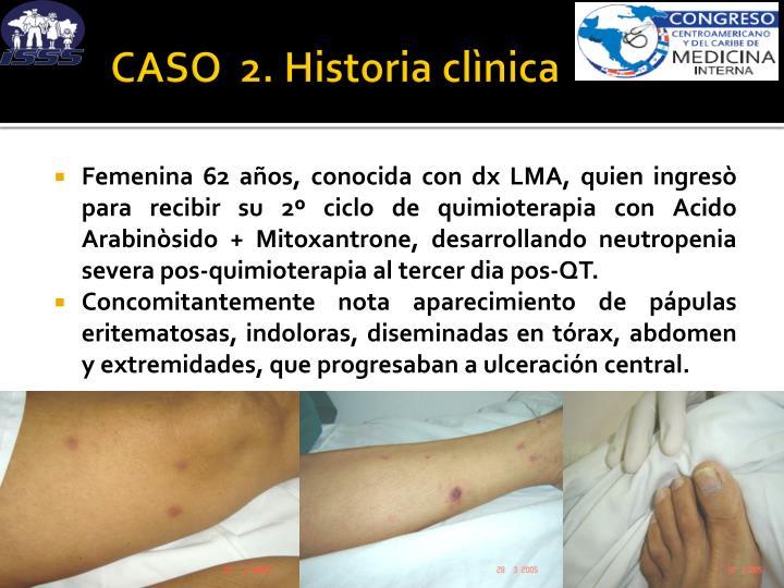 CASO  2. Historia