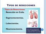 tipos de resecciones
