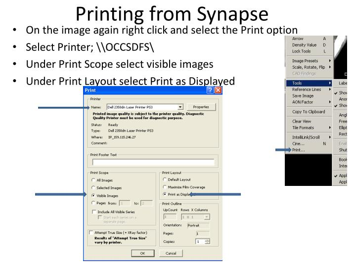 Printing from Synapse