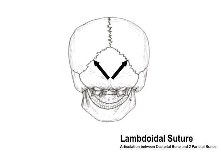 Lambdoidal