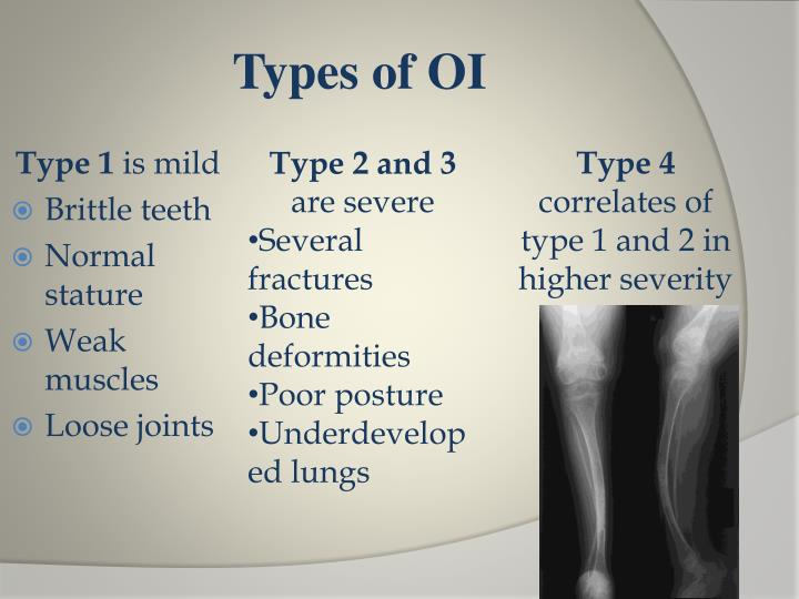 Types of OI