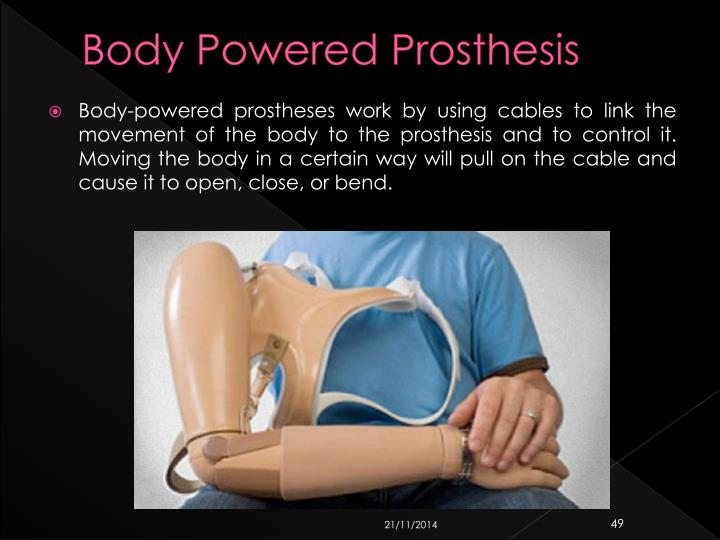 Body Powered Prosthesis