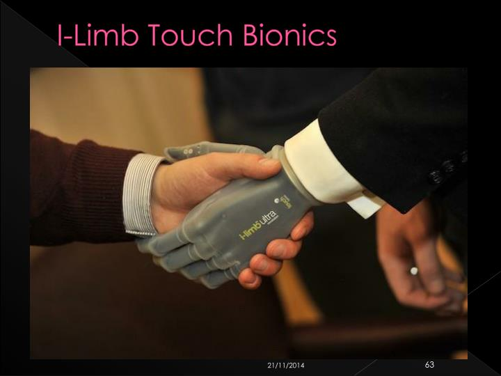 I-Limb Touch Bionics
