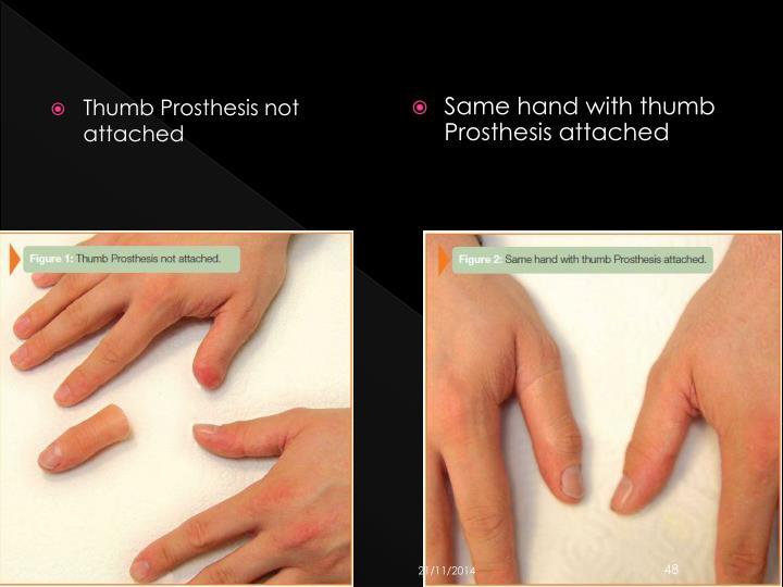 Thumb Prosthesis not