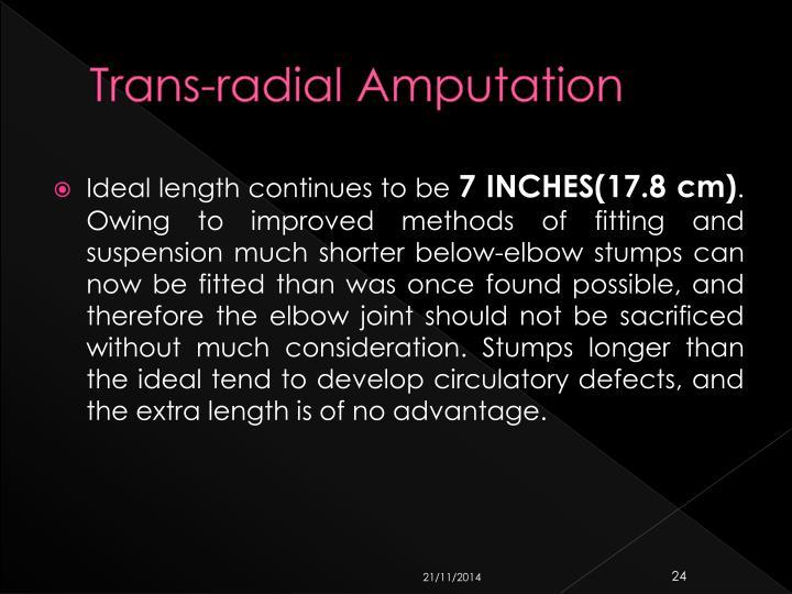 Trans-radial Amputation