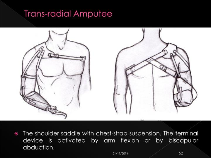 Trans-radial Amputee