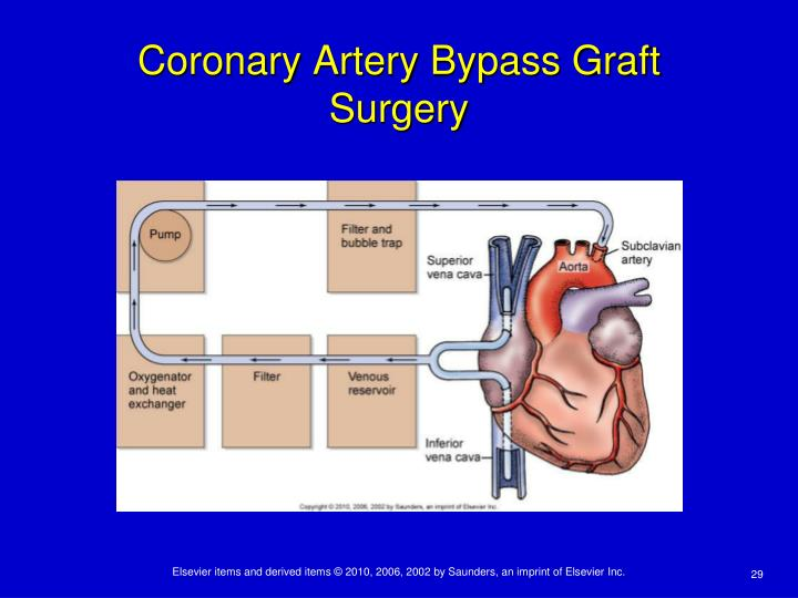 Coronary Artery Bypass Graft Surgery