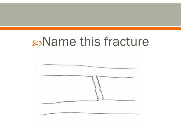 Name this fracture