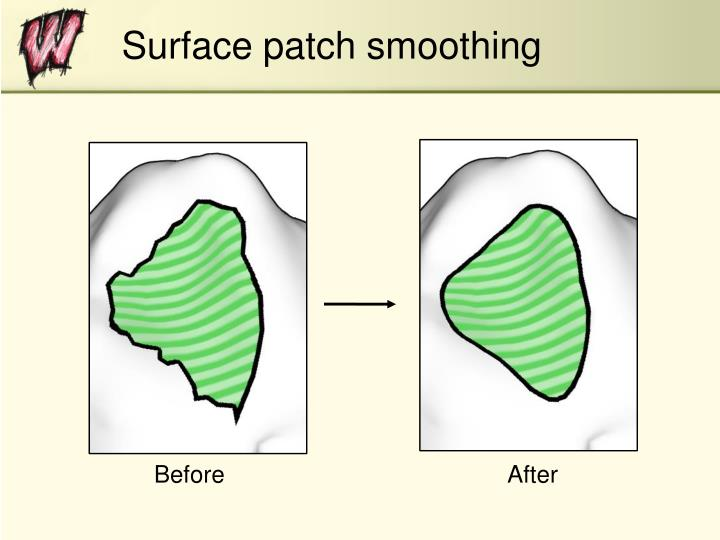 Surface patch smoothing