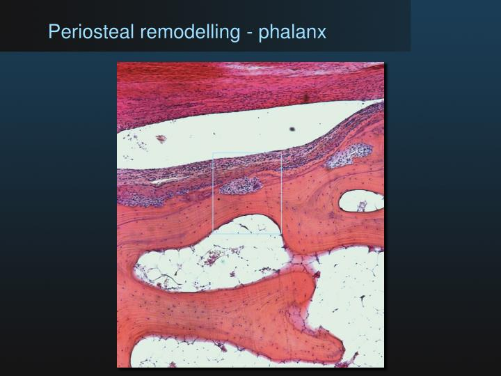 Periosteal remodelling - phalanx