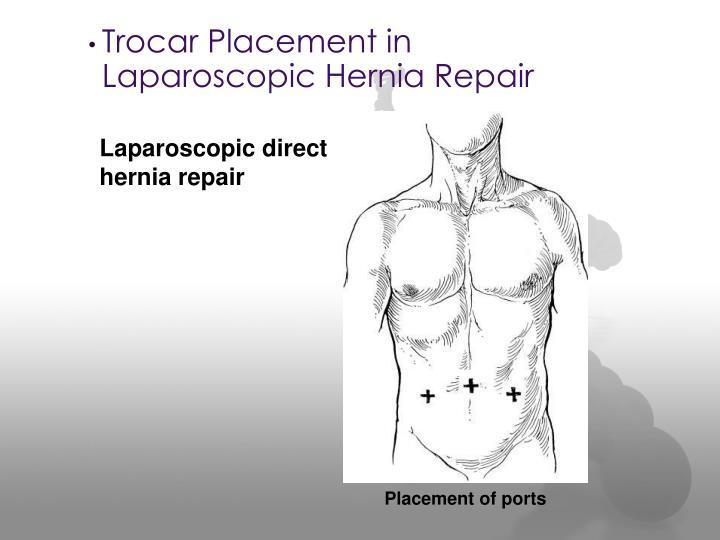 Laparoscopic direct hernia repair