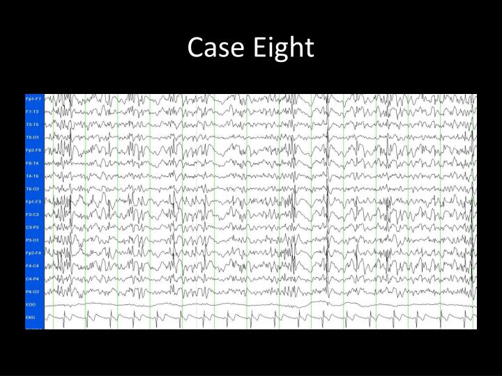 Case Eight