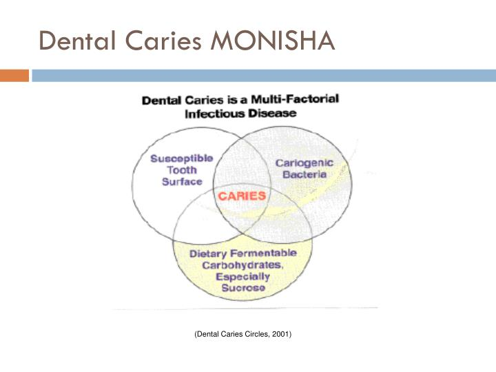 Dental Caries MONISHA