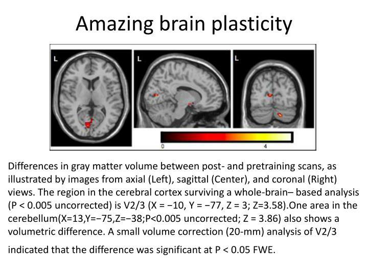 Amazing brain plasticity