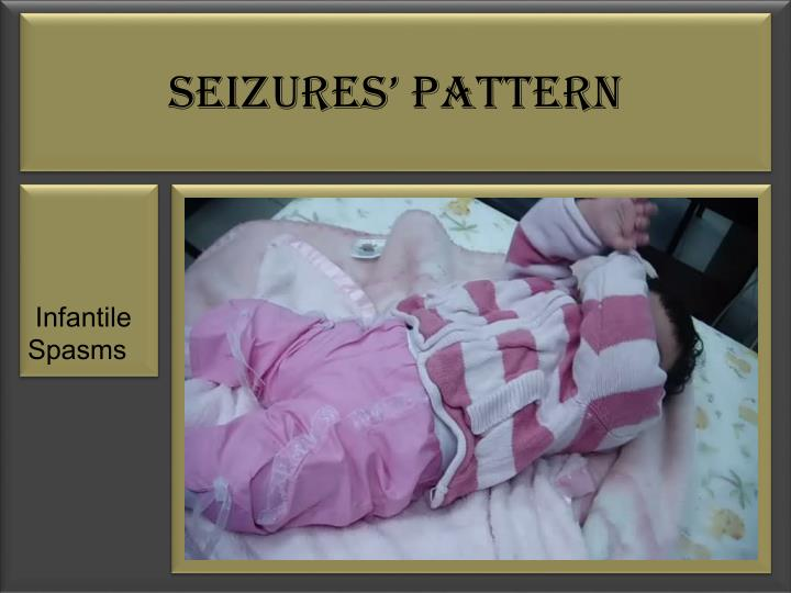 Seizures' Pattern