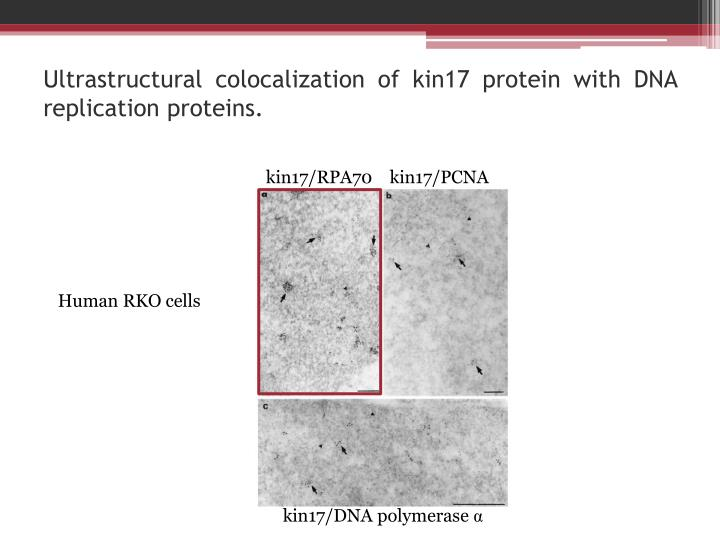Ultrastructural colocalization of kin17 protein with dna replication proteins