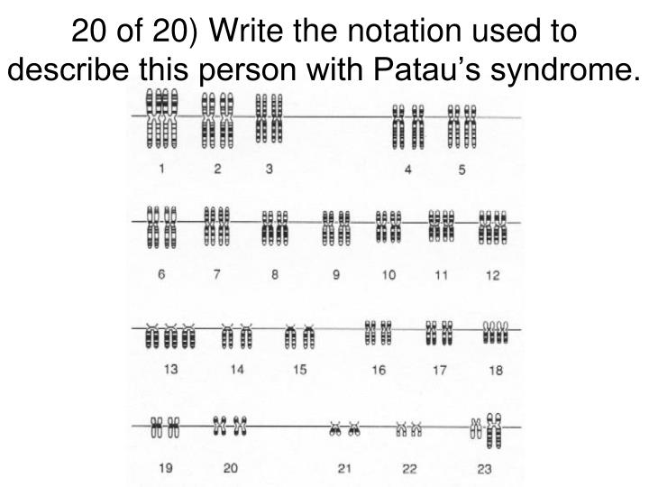 20 of 20) Write the notation used to describe this person with Patau's syndrome.