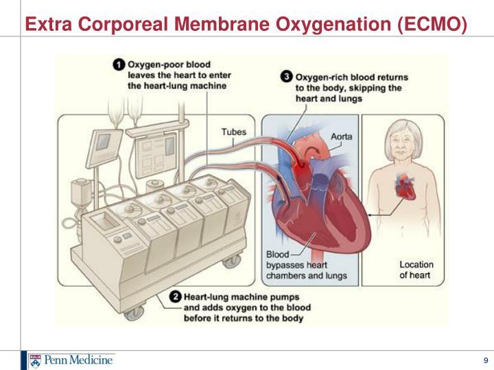 Extra Corporeal Membrane Oxygenation (ECMO)