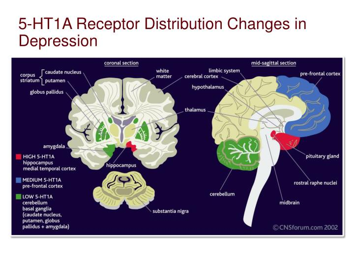 5-HT1A Receptor Distribution Changes in Depression