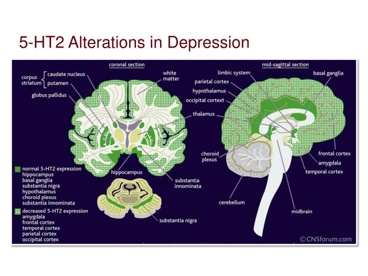 5-HT2 Alterations in Depression