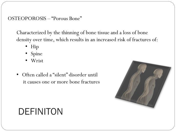 """OSTEOPOROSIS – """"Porous Bone"""""""