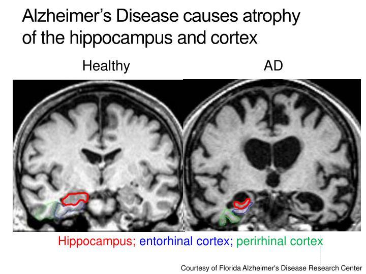 alzheimer s causes - DriverLayer Search Engine