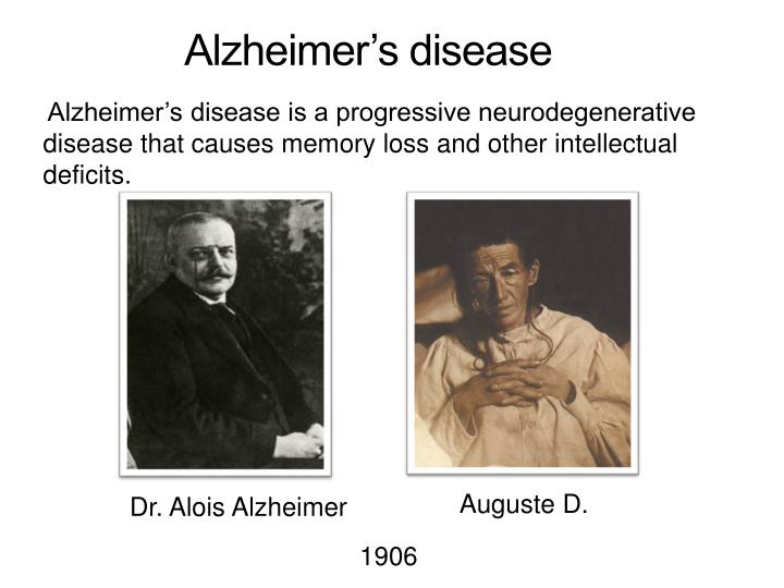 effects disease learning adult alzheimers how