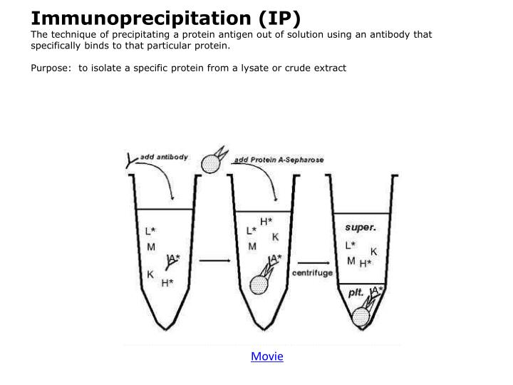Immunoprecipitation (IP)