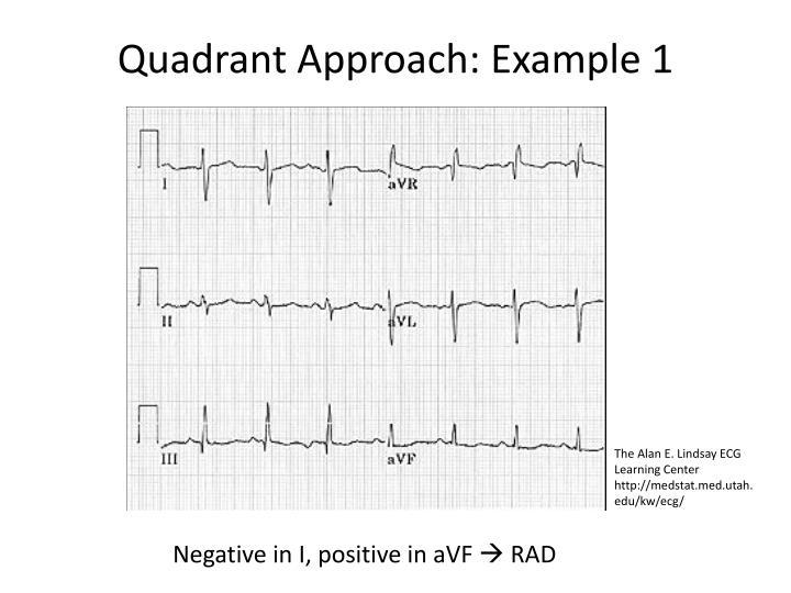 Quadrant Approach: Example 1
