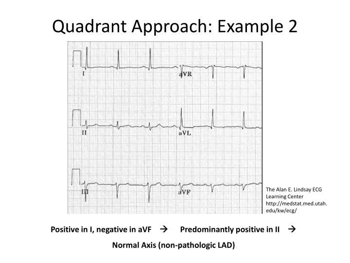 Quadrant Approach: Example 2