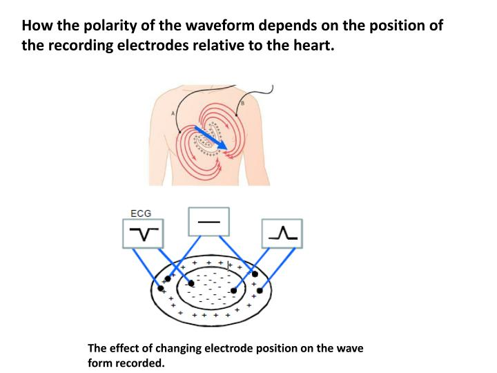 How the polarity of the waveform depends on the position of the recording electrodes relative to the heart.