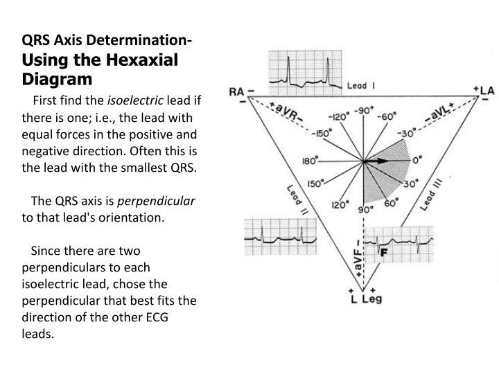 QRS Axis Determination-