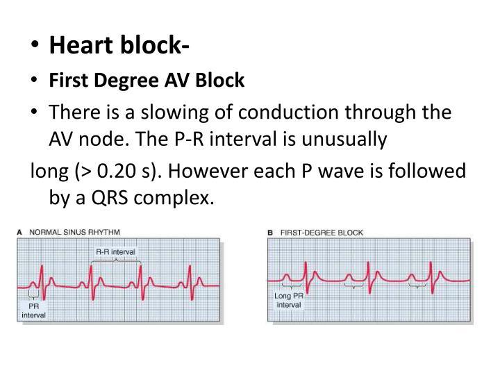 Heart block-