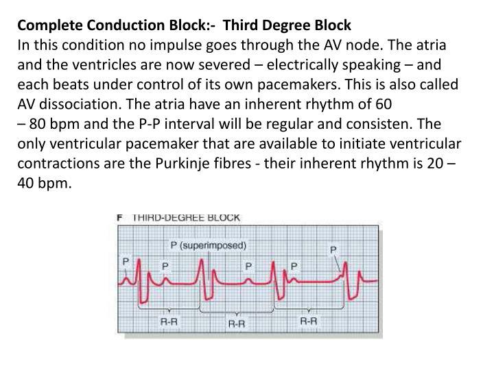 Complete Conduction Block:-  Third Degree Block