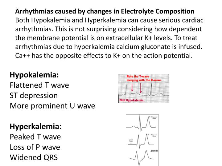 Arrhythmias caused by changes in Electrolyte Composition