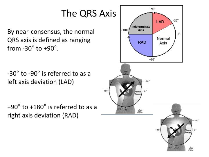 The QRS Axis