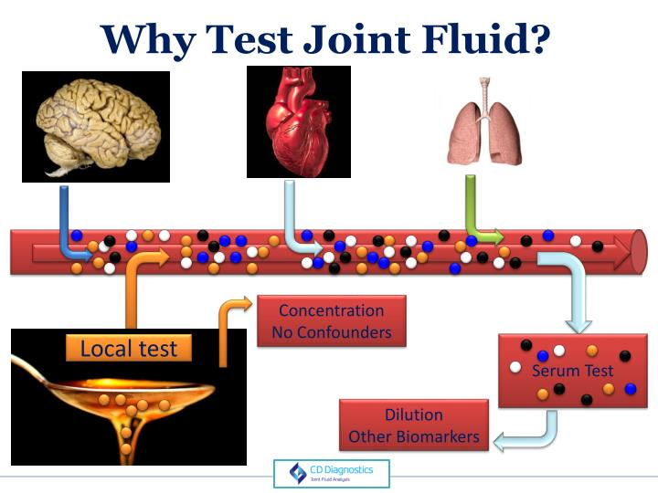 Why Test Joint Fluid?