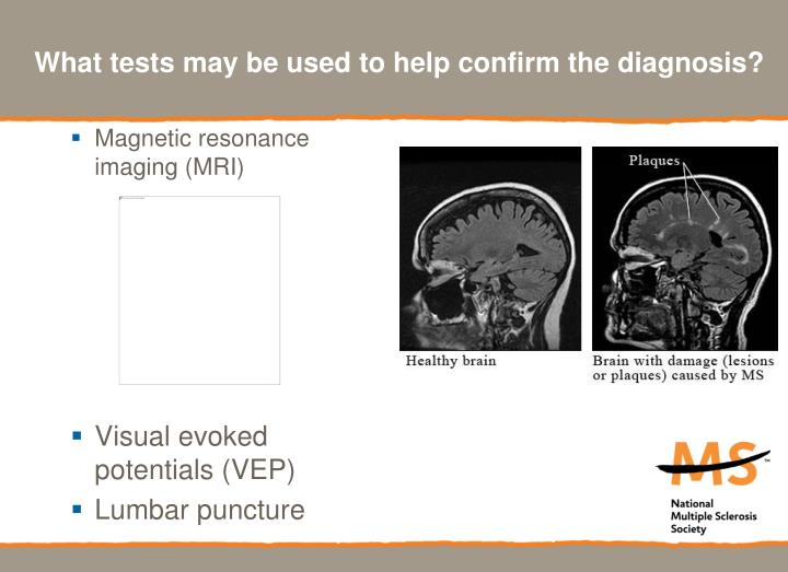 What tests may be used to help confirm the diagnosis?