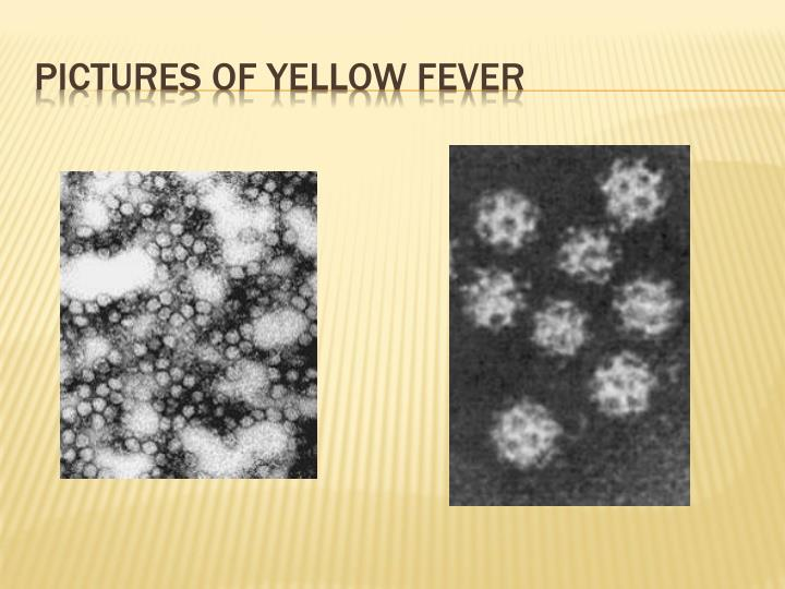 Pictures of yellow fever